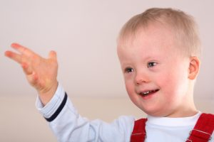 Down syndrome: an overview