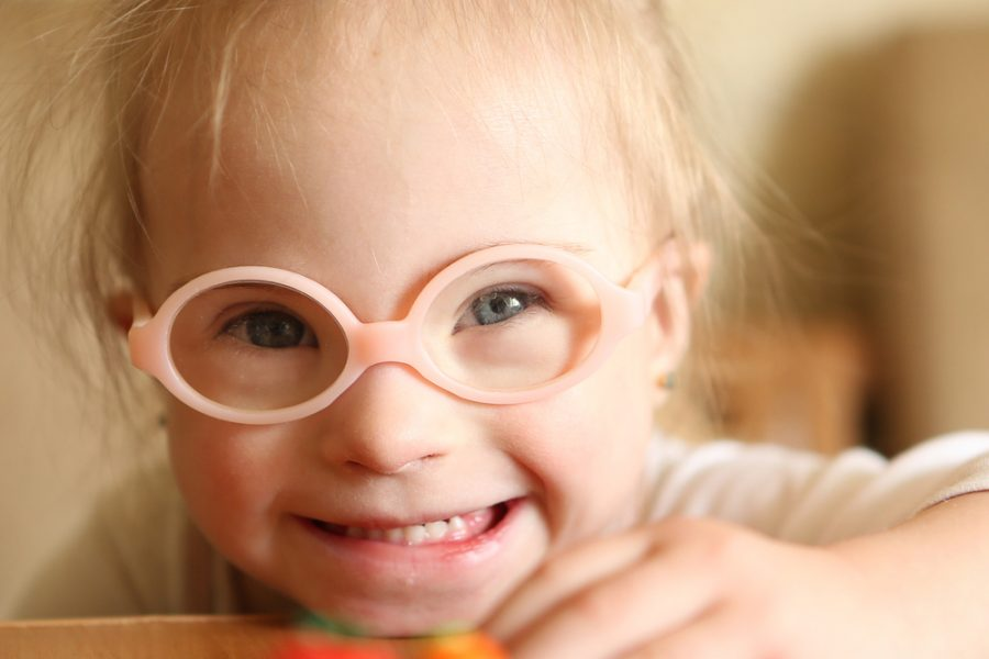 Down Syndrome & Cognitive Development