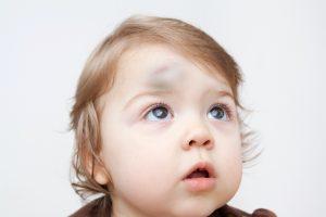 toddler head injury