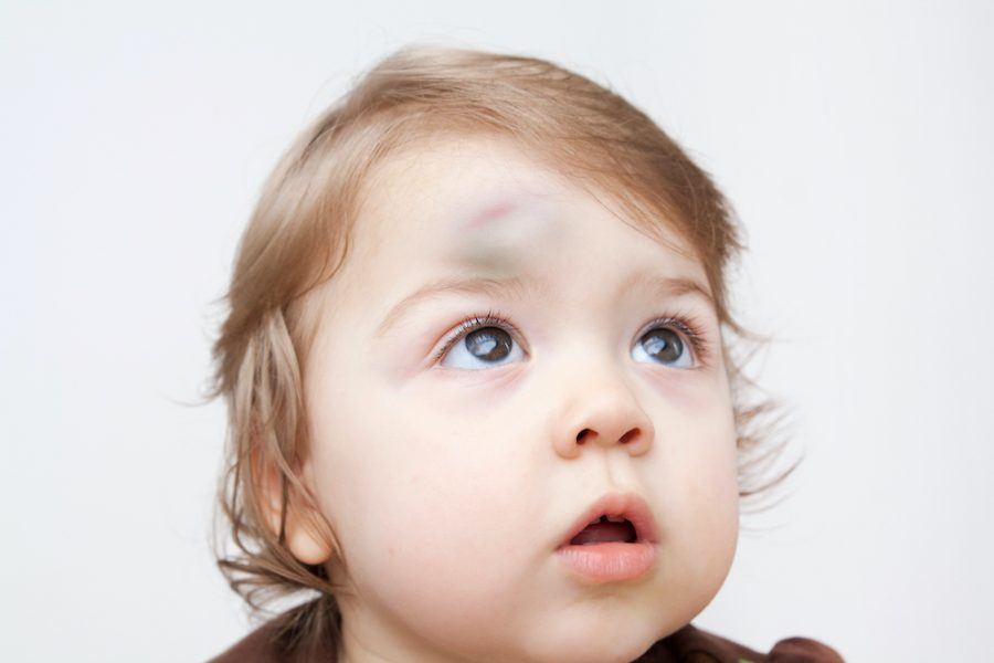 Did Your Toddler Hit Their Head?